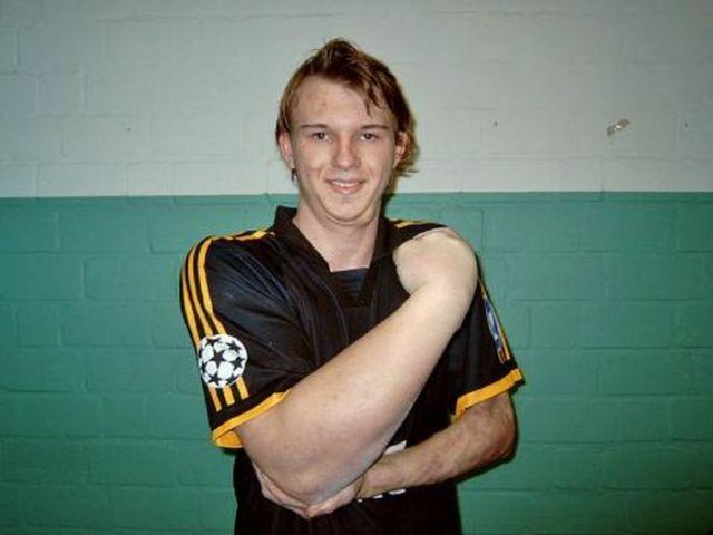 Matthias Schlitte, German Arm Wrestling Champion, Has A Hulk of A